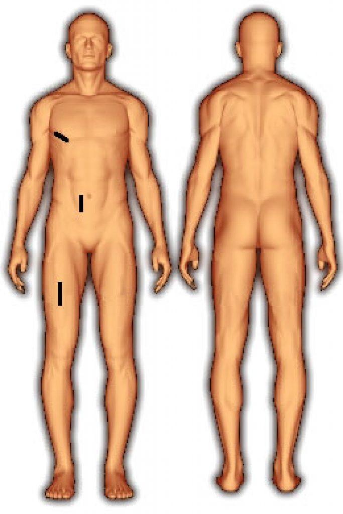 body_fat_3_folds_jackson_pollock_male-1-683x1024