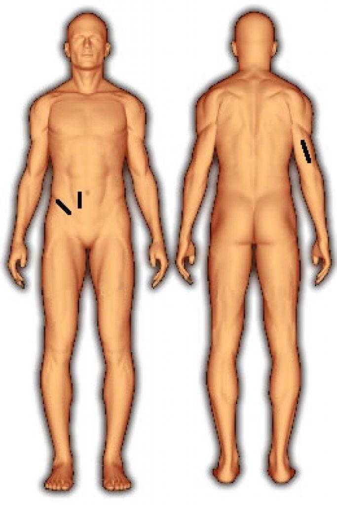 body_fat_3_folds_jackson_pollock_ward_female-1-683x1024