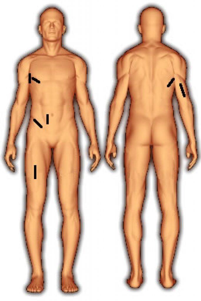 body_fat_7_folds_jackson_pollock_ward_female-1-683x1024
